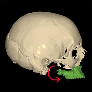 Rotation antihoraire du maxillaire