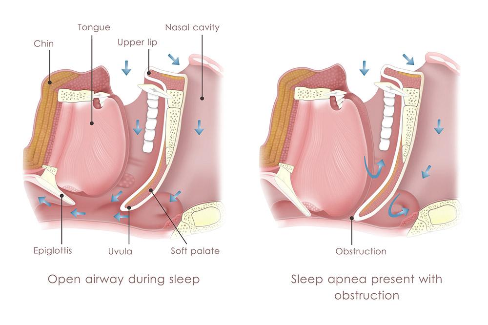 Qu'es-ce que l'apnée du sommeil ?