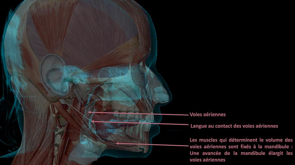 Traitements chirurgicaux : Voies aériennes respiratoires