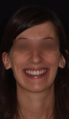 Traitements chirurgicaux : Sourire pré-opératoire